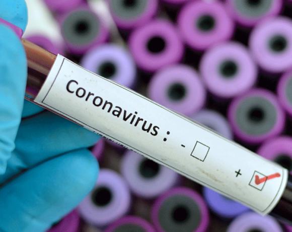 Kαθηγητής του ΑΠΘ εξηγεί γιατί ο ιός δεν δραπέτευσε από κάποιο εργαστήριο