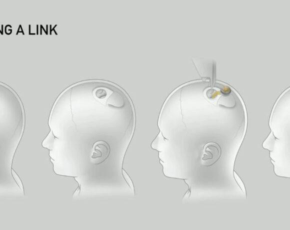 Η Neuralink του Elon Musk φέρνει το εμφύτευμα με το οποίο θα ελέγχετε τον εγκέφαλο σας