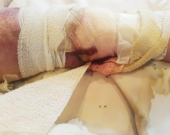 Κοροναϊός : Αποτρόπαιες εικόνες σε γηροκομείο – «Μυρμήγκια περπατούσαν πάνω στις πληγές της»