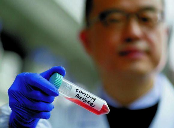 Κοροναϊός – Iταλία: Ξεκίνησαν δοκιμές σε εθελοντές για πιθανό εμβόλιο