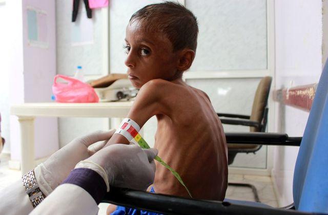 Μετά το Νόμπελ η… πείνα : Δεν δίνουν χρήματα οι δωρήτριες χώρες ενάντια στον λιμό