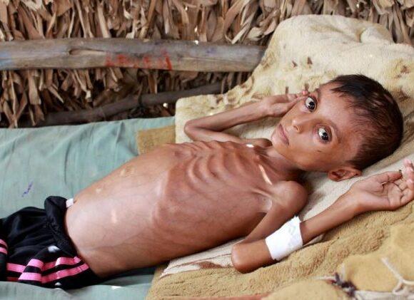 Υεμένη : Η πείνα στοιχειώνει τα παιδιά της χώρας – Η συγκλονιστική ιστορία του 10χρονου Χάσαν