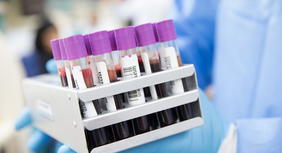 US to Require Negative Covid-19 Tests for International Travelers
