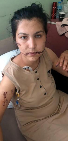 Σοκαριστικό περιστατικό ενδοοικογενειακής βίας στην Τουρκία – Την μαχαίρωσε 104 φορές – «Βλέπω τον θάνατο σου»